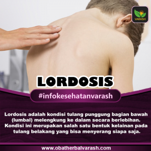 Apa Penyebab Lordosis dan Bagaimana Pengobatannya